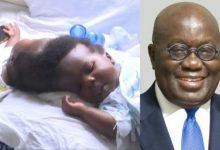 Photo of Akufo-Addo finally settles full cost of surgery of the conjoined twins